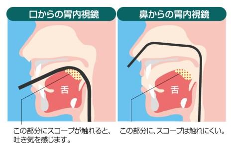 経口・経鼻内視鏡